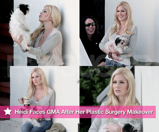 Heidi Montag Faces GMA After Her Plastic Surgery Makeover