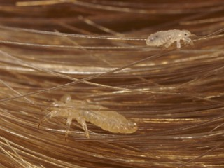 What Head Lice Look Like