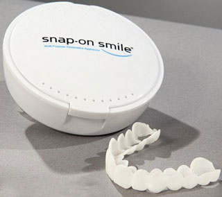 Snap-On Smile Veneer Alternative