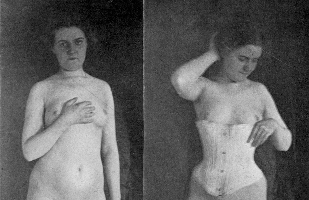 These before and after corset photos are from Robert Wilson Shufeldt's 1908 book Studies of the Human Form For Artists, Sculptors, and Scientists.