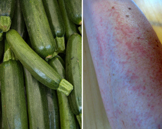 Zucchini and Skin Rashes