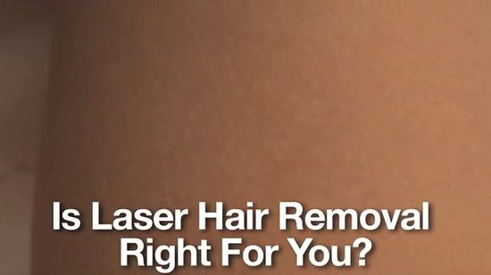 Preview — BTV Feature: Laser Hair Removal
