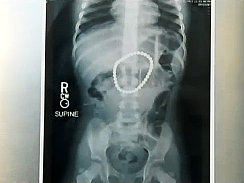 Toddler Survives After Swallowing 37 Magnets (X-RAY PHOTOS)