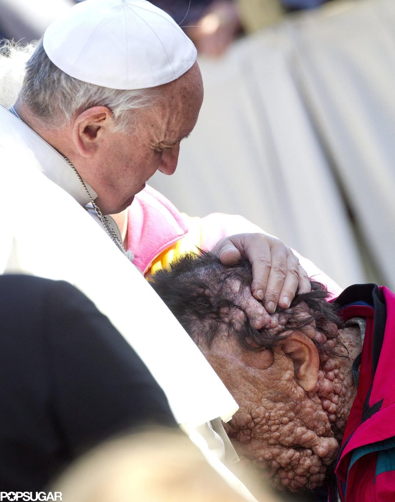 Pope Francis Kissing a Disfigured Man