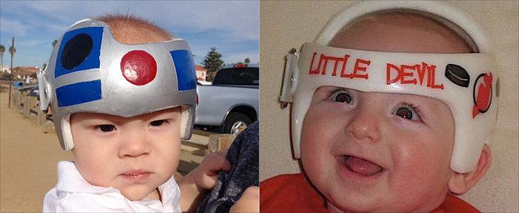 Parents Transform Babies' Helmets From Sad to Sensational