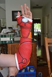 """Dealing with wearing a cast, you're doing it goddamn right."" Source: Imgur user steve699"