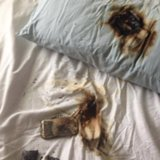 Phone Burns Under Pillow