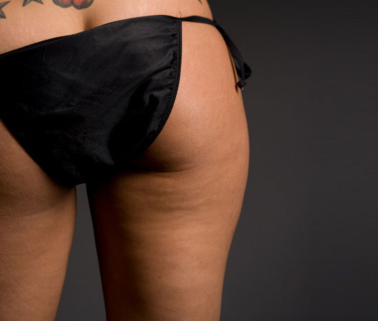"""<a href=""""http:/... You Have Cellulite?</a>"""