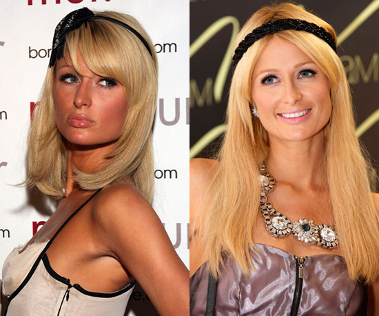 Which extensions should Paris choose?