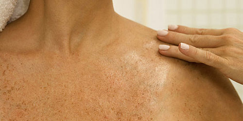 Feeling Flaky? Tips For Dealing With Dry Skin