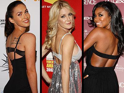 STRAP-BACK DRESSES -- Love It Or Leave It?