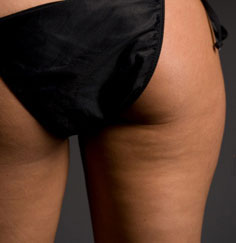 Things to Know About Cellulite