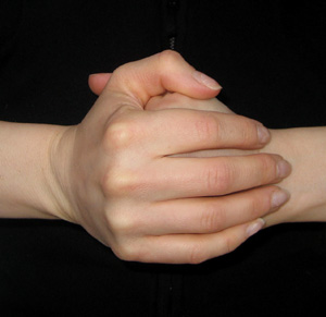 You Asked: Does Cracking Your Knuckles Cause Joint Damage?