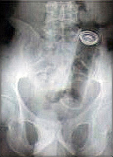 Guess What X-Rays Reveal Is Stuck in This Woman's Bum?