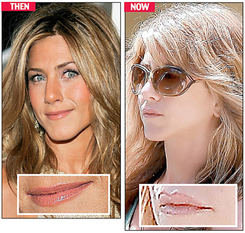 Jennifer Aniston Got New Lips