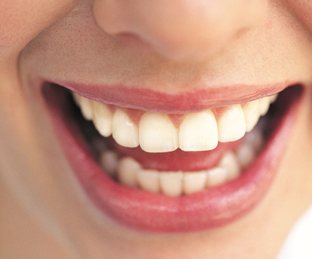 How to Keep your Teeth Pearly White