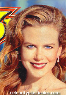Did Nicole Kidman have a nose job?