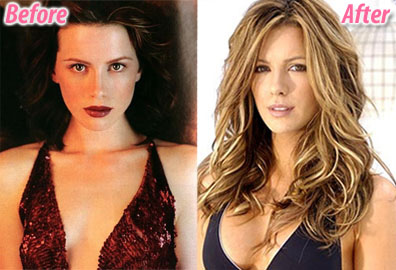 Did Kate Beckinsale have a boob job?