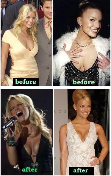 Did Jessica Simpson have a breast lift?