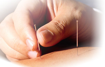 Let's Get to the Point About Acupuncture
