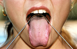 Tongue Scraper