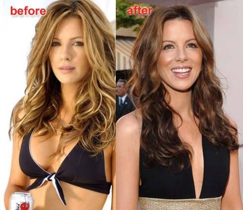 Kate Beckinsale cant decide if she likes implants or not...