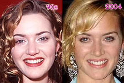 Kate Winslet-- HAD a honker!